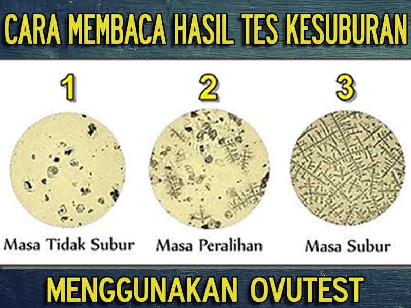 Jual Alat Uji Kesuburan Ovutest di Aceh Singkil