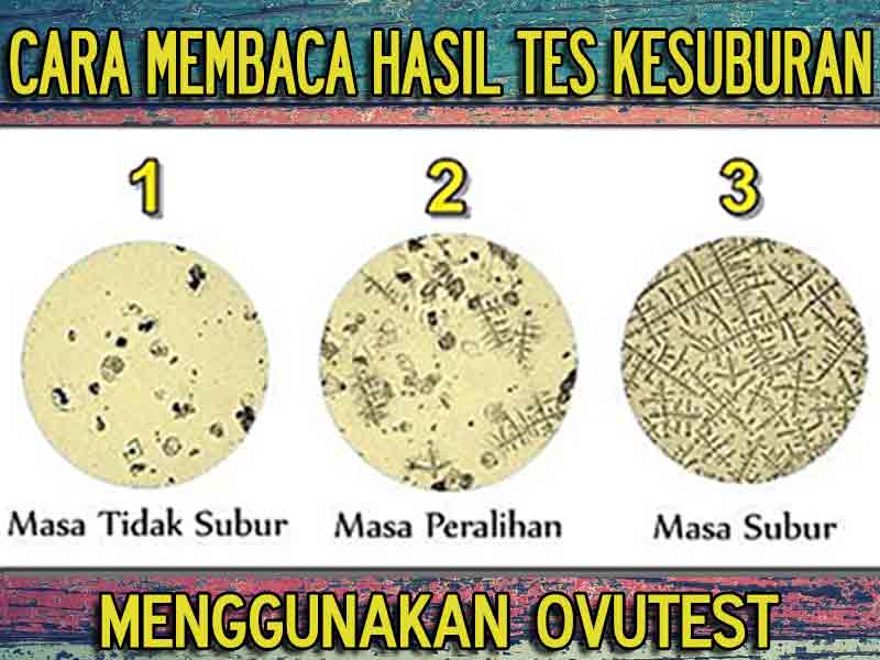Review Ovutest Sensitif Uji Masa Subur